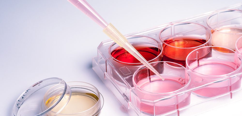 Siamab Therapeutics' Antibody Drug Conjugates Show Promising Results in Ovarian Cancer