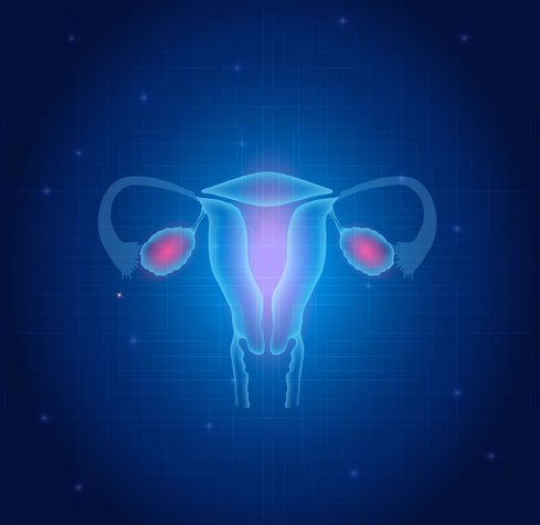 Clinical trial testing NKR-2 immunotherapy in ovarian cancer continues showing success, Celyad announces
