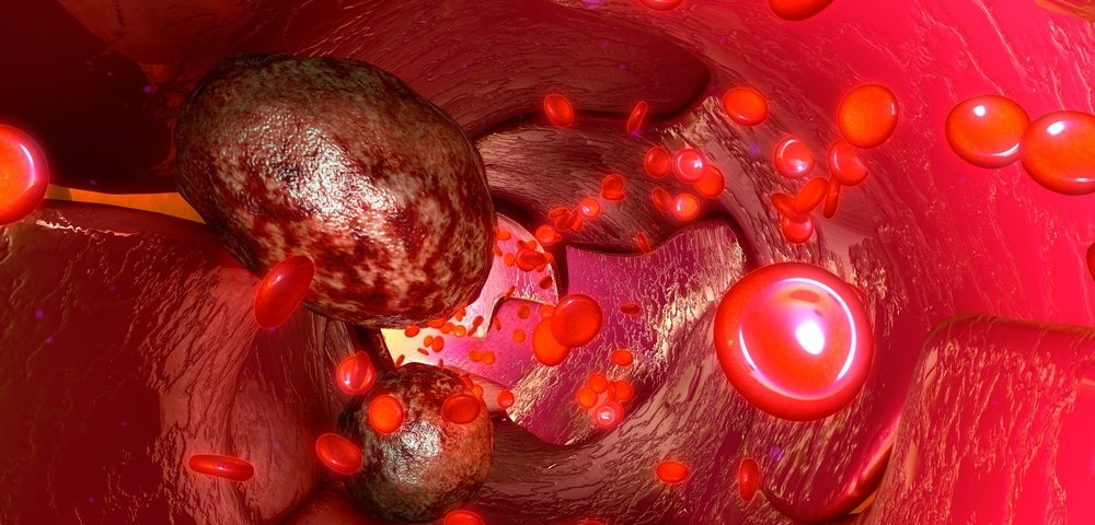 Study Analyzes Use of Circulating Tumor Cells as Prognostic Marker in Ovarian Cancer