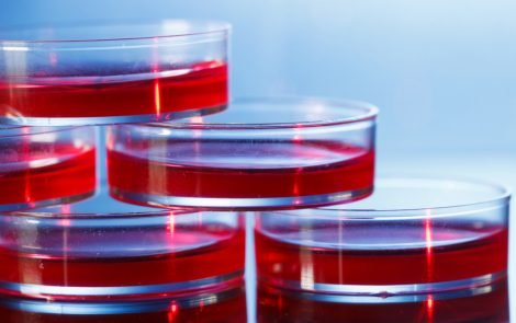 Celyad's CAR T-cell Therapy Shows Promise in 2 Patients with Advanced Colorectal Cancer