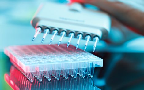 Parsortix-based Blood Test Out-performs CA125 in Detecting Ovarian Cancer, Studies Show